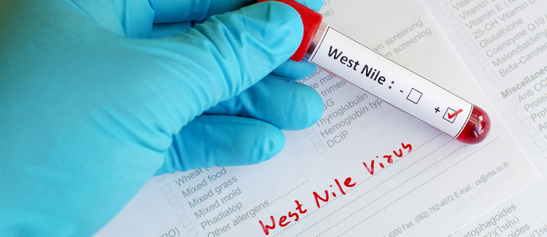 West Nile Virus: What you need to know